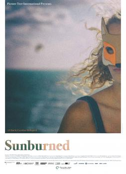 Sunburned